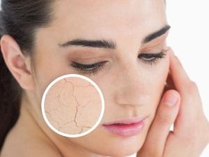 Маски для очень сухой кожи