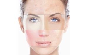 Выбор крема для смешанного типа кожи