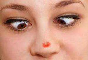 Красный прыщ на носу