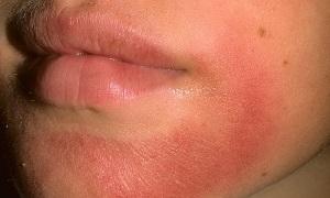 Псориаз на лице как лечить