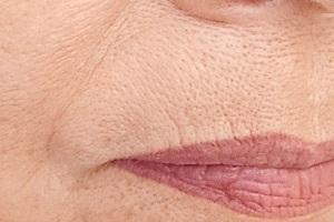Причины морщин над губой у женщин