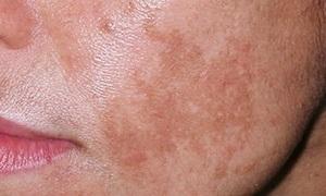 Причины пигментации кожи у женщин