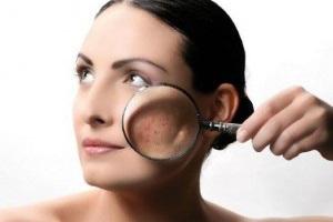 Причины себорейного дерматита лица