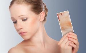 Симптомы демодекса на лице