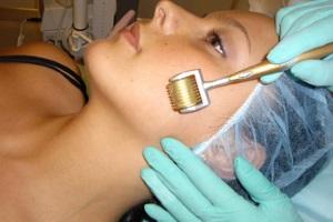 Аппаратная мезотерапия лица