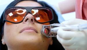 Подготовка к лазерному удалению сосудов на лице