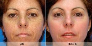 Уход за кожей после лазерного отбеливания пятен