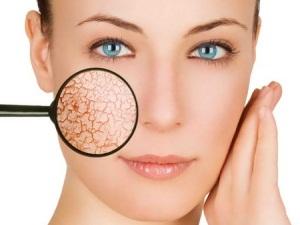 Причины сухости кожи у женщин