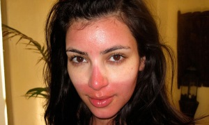 Степени солнечного ожога лица