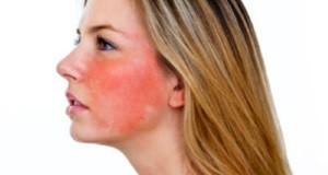 Как лечить розацеа лица?