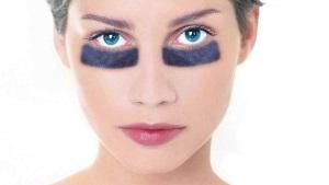 Что помогает от синяков под глазами?
