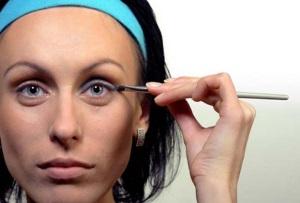 Как убрать мешки под глазами без операции?