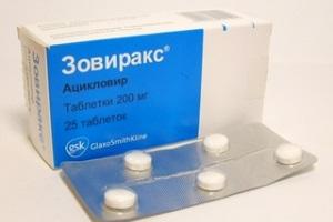 Таблетки как метод избавления