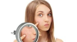 Причины появления косметического недостатка
