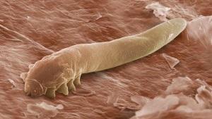 Причины появления паразита