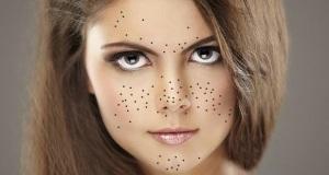 Как избавиться от комедонов на лице?