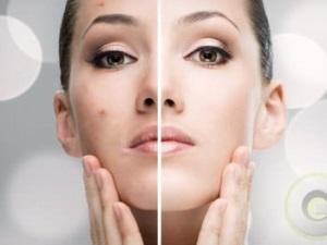 Эффективность крема и спрея