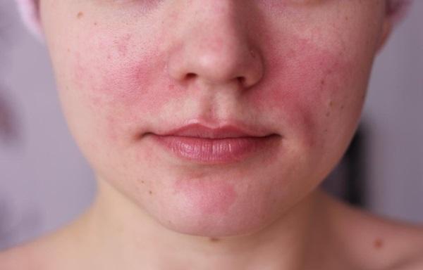 Общее описание и классификация заболевания кожи