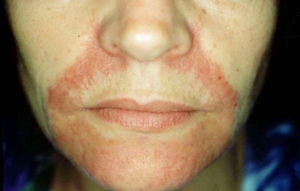 Симптомы проявления болезни кожи