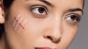 Средство от шрамов на лице