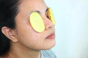 Сырой картофель для кожи вокруг глаз