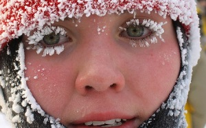 Аллергия на мороз на лице