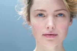 Проявления аллергии на холод на лице