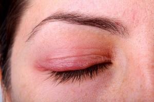 Блефарит-симптомы и лечение