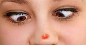 Как лечить прыщи на носу?