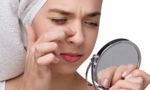 Лечение прыщей на носу