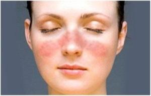 Лекарства от псориаза на лице