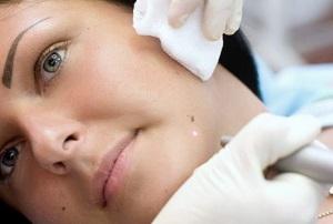 Методы удаления плоских бородавок с лица