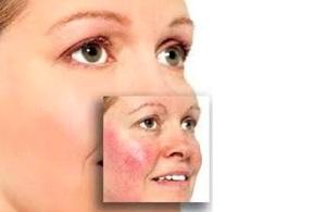 Причины демодекоза лица
