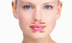 Причины прыщей на губах у женщин