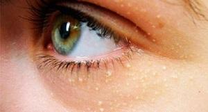 Причины жировиков на лице и лечение