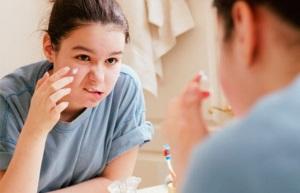 Прыщи на щеках у женщин-лечение