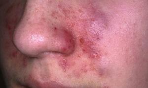 Симптомы экземы на лице