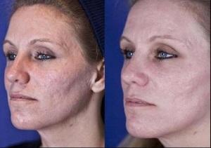 Эффективность лазерного пилинга лица