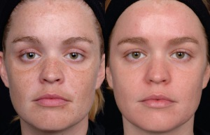 Лазерное удаление пигментации на лице