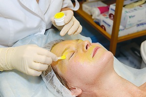 Показания к ретиноловому пилингу лица