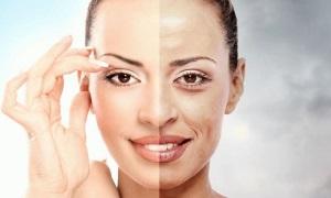 Преимущества лазерного пилинга лица