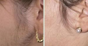Процедура удаления нежелательных волос на лице лазером