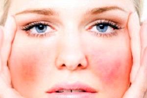 Аллергия на солнце на лице