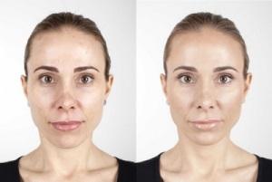Понятие и необходимость косметического средства