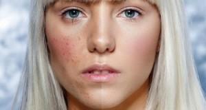 Как убрать рубцы от прыщей на лице?