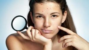 Применение в уходе за кожей лица