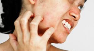 Стрептодермия кожи лица 24