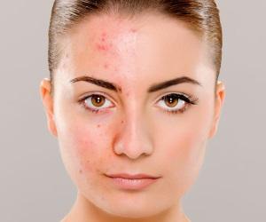 Как действует на кожу?