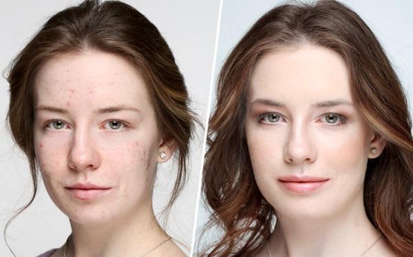 Тональный крем для лица: роскошь или необходимость?