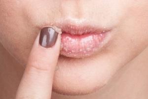 Подготовка кожи губ